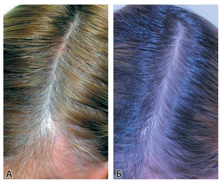 Компливит при выпадении волос у женщин