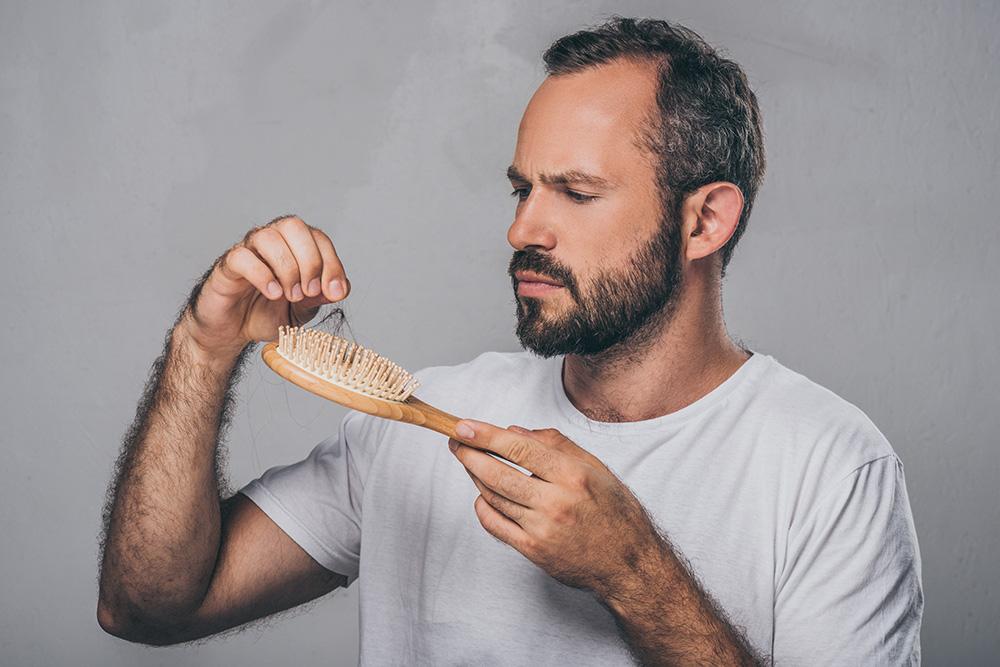 Мифы о выпадении волос у мужчин